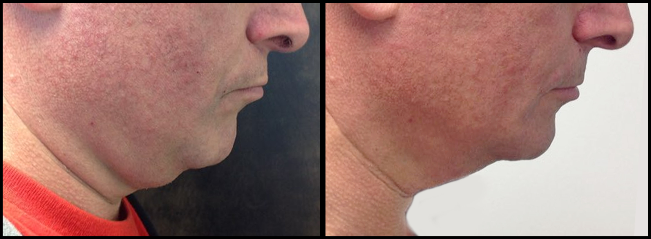Kybella-1-treatment