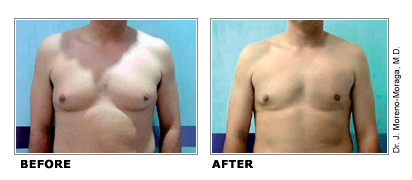 ultrashape_pseudo_gynecomastia_toronto_before_after