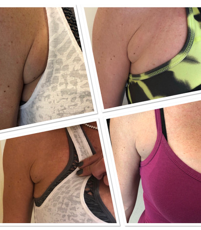 Skin Tightening Fat Reduction A Beautiful Image by Nikole