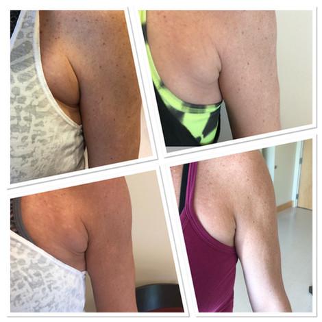 Skin Tightening Fat Reduction Joplin A Beautiful Image by Nikole