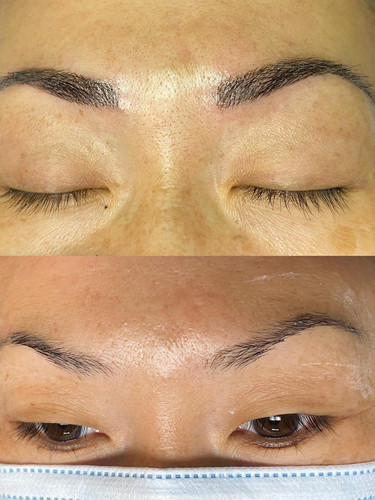 Dr Fly's Microblading_0018_105427180_312