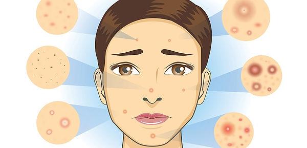acne-soleil.jpg