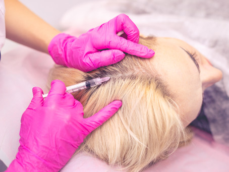 Le Microneedling capilaire ?