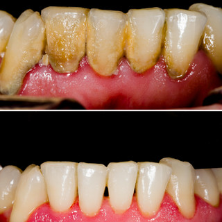 Dental Calculus removal