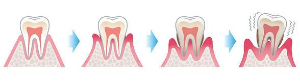 parodontologia-piorrea-768x213.jpg