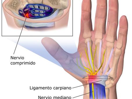 Síndrome del Túnel Carpiano: signos y síntomas, causas y tratamiento