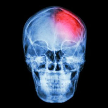 Right Brain Structures May Hold Clue To Language Recovery After Stroke