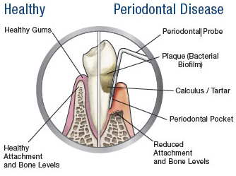 Periodontal health, what you should know