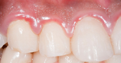 Prevention of Periodontal Disease May Save You Money