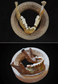 Did you know dental crowding happened 12000 years ago?
