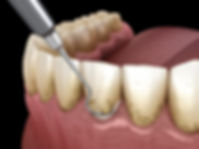 ross-dixon-dds-gum-disease-cosmetic-dent