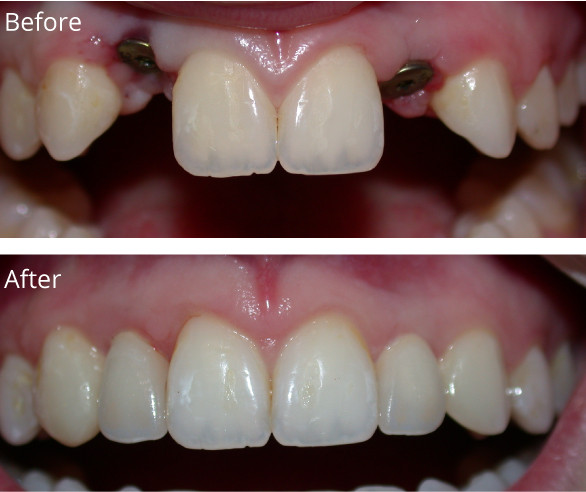 Implants-CC1-022719.jpg