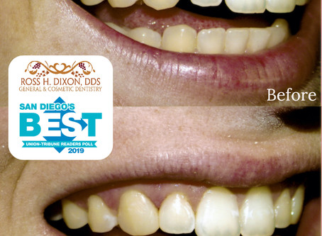 Our Services: Cosmetic Dental Bonding
