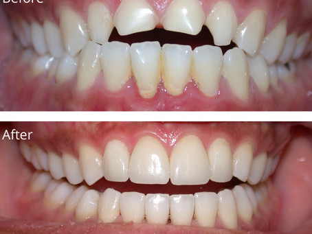 Dental Crowns Make you smile