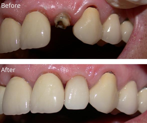 Implants-BC1-022719.jpg