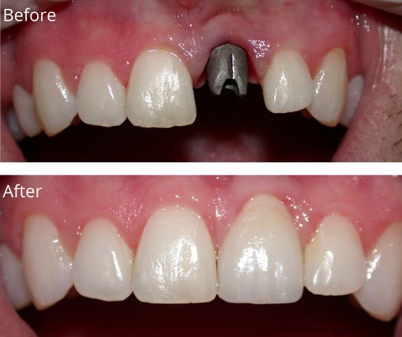 Implants-O1-022719.jpg