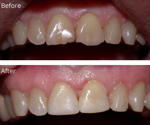 Bonding-Front-Teeth-022719.jpg
