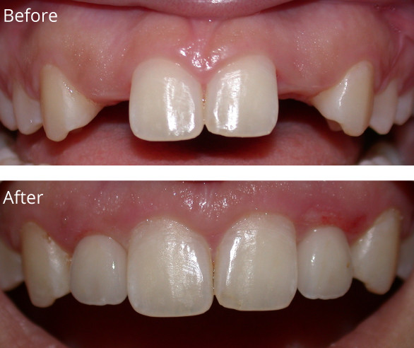 Implants-L1-022719.jpg