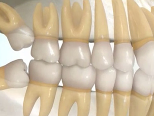 Brushing Teeth after Wisdom Tooth Extraction Can Be Tricky