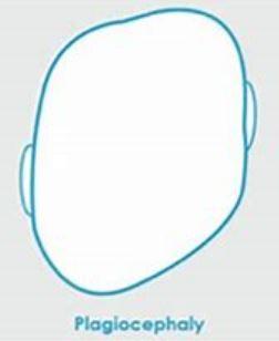 Flat head