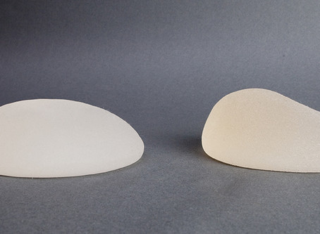 Comment choisir le type d'implant mammaire? Quels implants me conviennent?