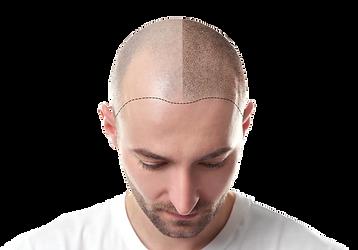 Greffe de cheveux a l etranger