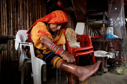 Rosina replace son wini, les bracelets de perles de verre que les femmes portent aux poignets et aux chevilles. L'habit traditionnel fait la fierté des femmes kuna. Si certaines jeunes femmes ne le porte aujourd'hui que lors des cérémonies traditionnelles, les plus agées le portent chaque jour. L'habit est constitué d'un paréo coloré et d'un haut cousu avec le mola, un bandana et des bijoux en or.