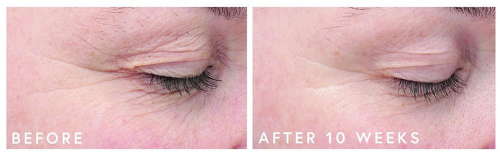Before & After - EGF Eye Serum