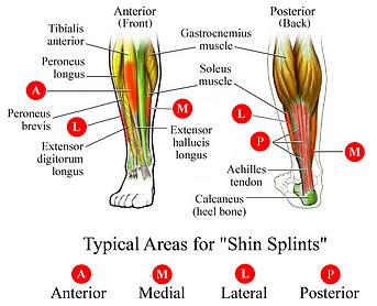 shin_splints.09.png