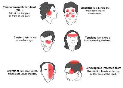 headache-types.jpg