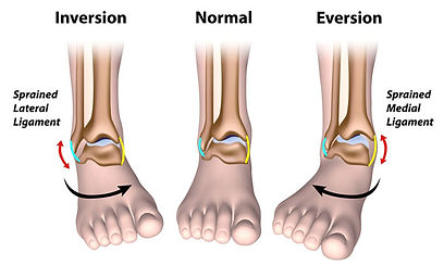 types-of-ankle-sprain600.jpg