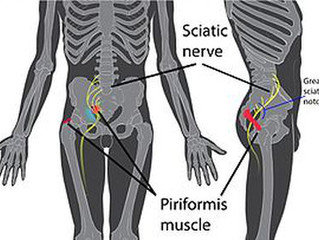 Piriformis Syndrome: A Real Pain in the Butt