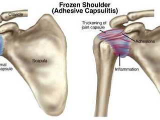 """""""50 Year"""" Shoulder: From Frozen to Fluid"""