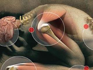 Arthritis, Pain & Osteopathy