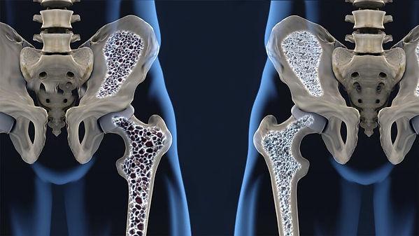 osteoporose-imagem.jpg