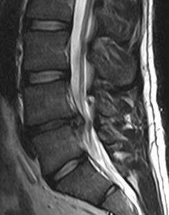 lumbar spine surgery stem cells for degenerative discs