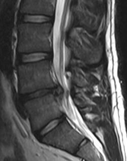 L4-l5-disc-herniation