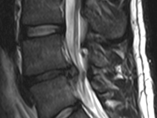 Low back: bulging and herniated discs