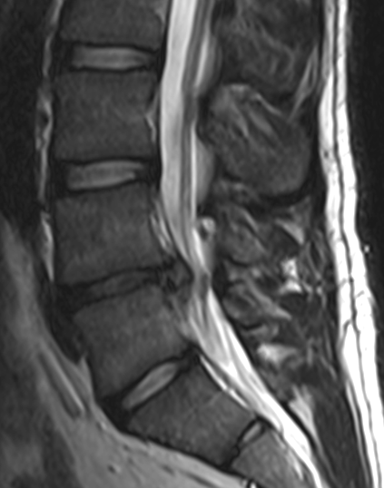 L4-5 herniated disc, bulging discs