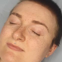 healed full face