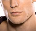 Laser Hair Removal Face Neck Nanaimo BC