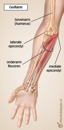 Illustratie Golfarm spieren met pijnpunt indicatie