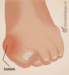 Illustratie voet met aandoening