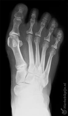 Rontgen foto van voet