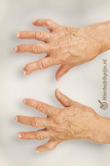 reumatoide-artritis-vingerspng