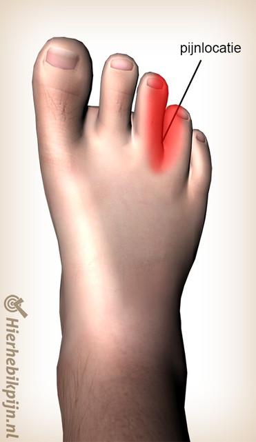 voet-mortons-neuroom-pijnlocatiejpg