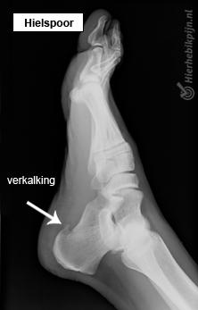 rontgenfoto van voet met een hielspoor