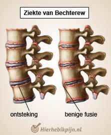 rug-specifieke-lage-rugpijn-ziekte-van-b