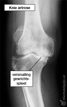 knie-artrose-rontgenpng
