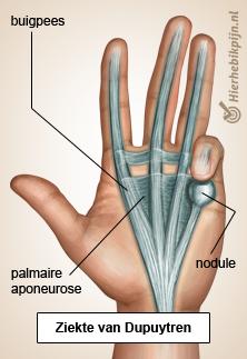 Illustratie van hand ziekte van dupuytren